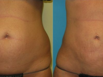 abdomen liposuction cincinnati