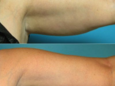 Arm liposuction Cincinnati