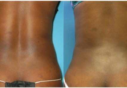 back liposuction cincinnati