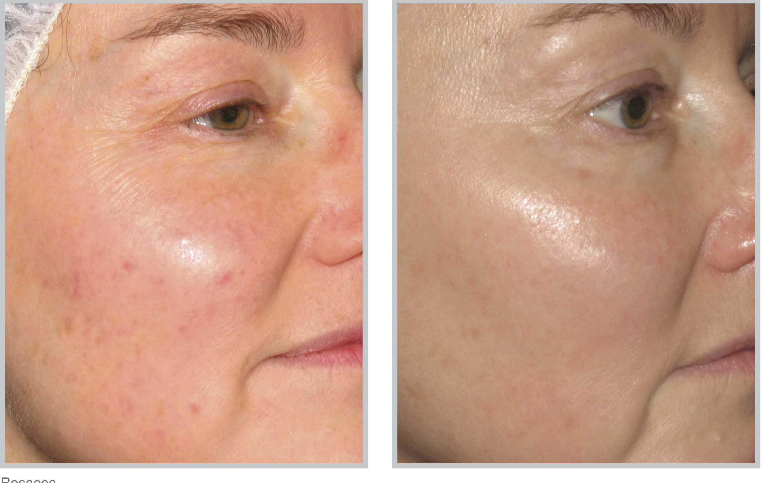 Photofacial Bbl Laser Treatment In Cincinnati Call Us