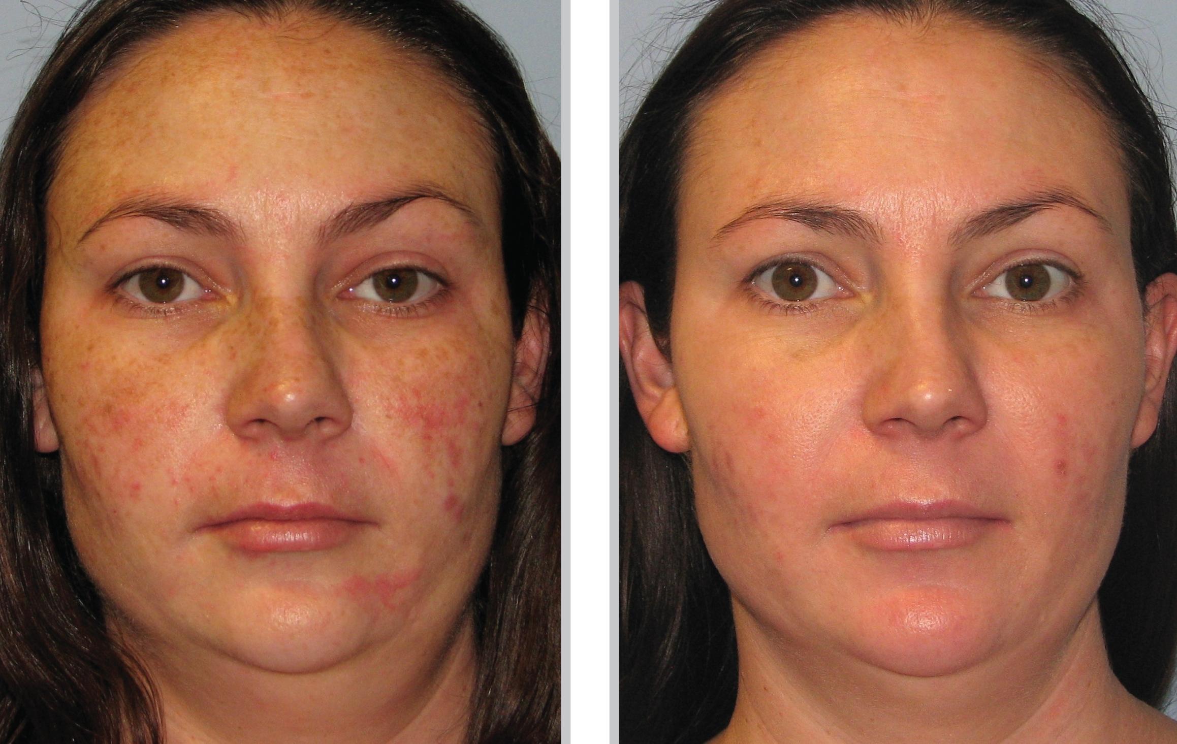 Photofacial Bbl Laser Treatment In Cincinnati Call Us