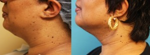 Smartlipo neck Transform medspa Cincinnati