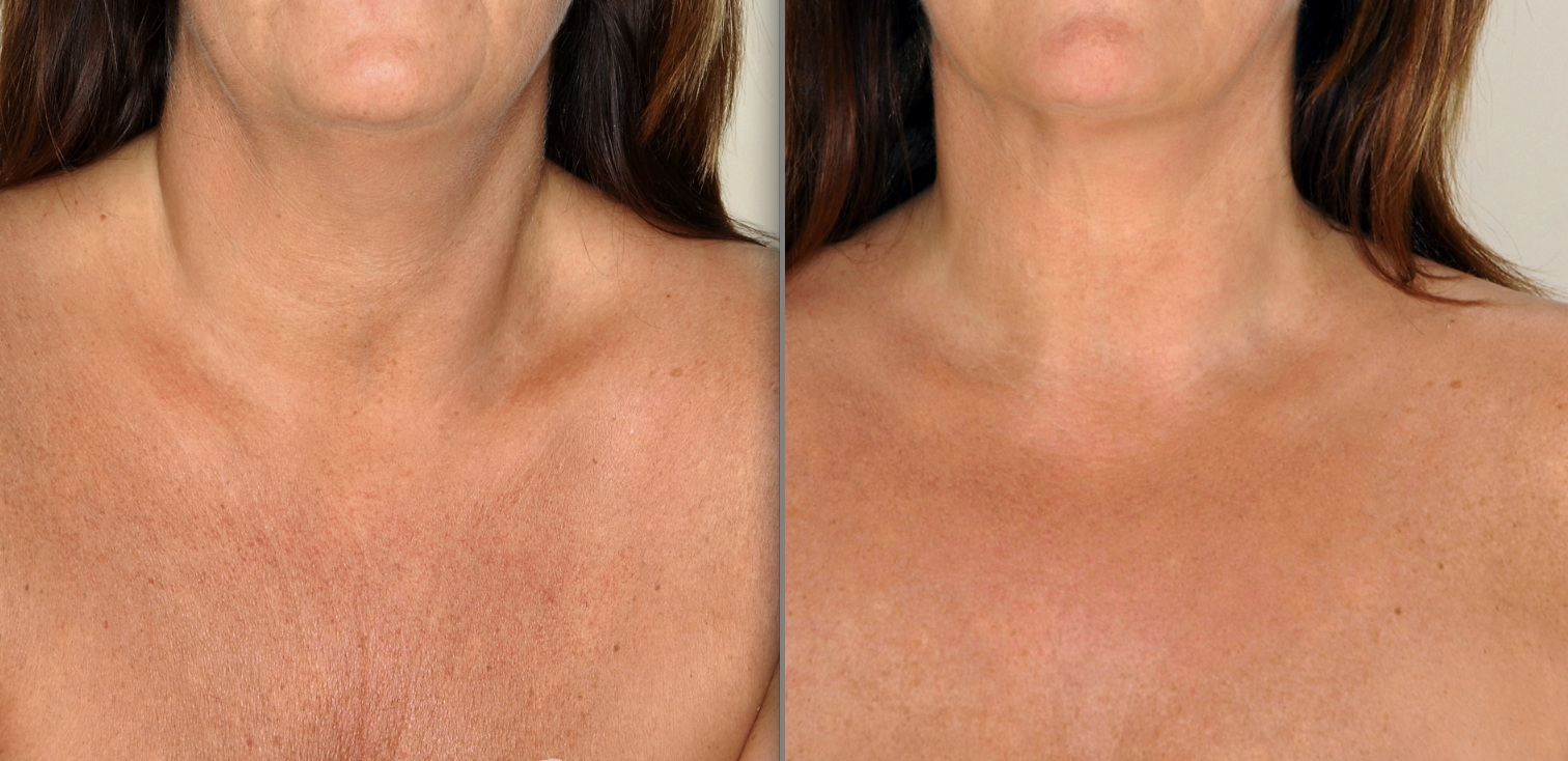 Chest wrinkle treatment